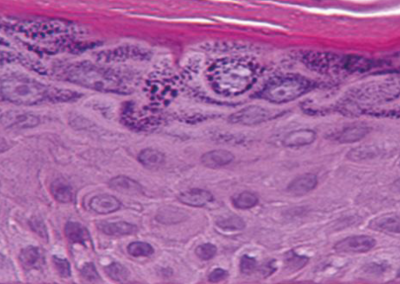 Cross section through reconstructed human epidermis