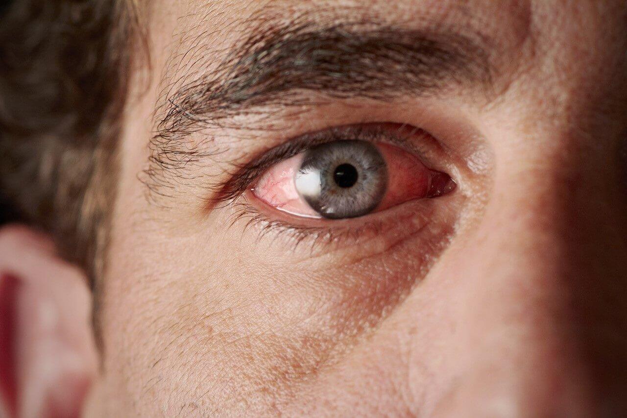 Focus on eye irritation